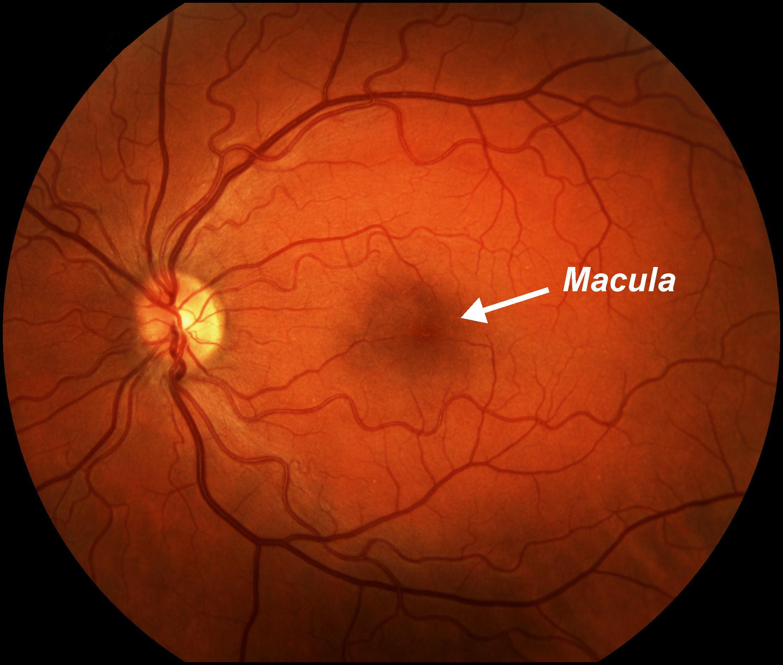 macular degeneration dr michael farrar